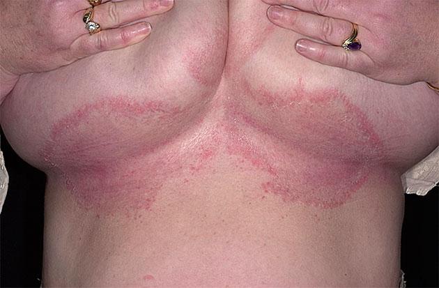 Опрелость под молочными железами: лечение и профилактика