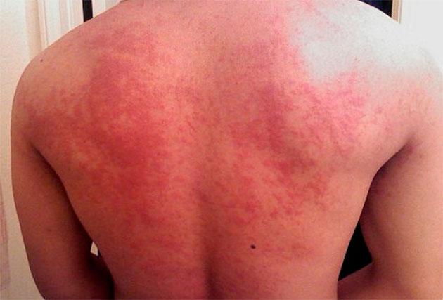 запущенная форма аллергии