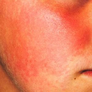 покраснение кожных покровов лица