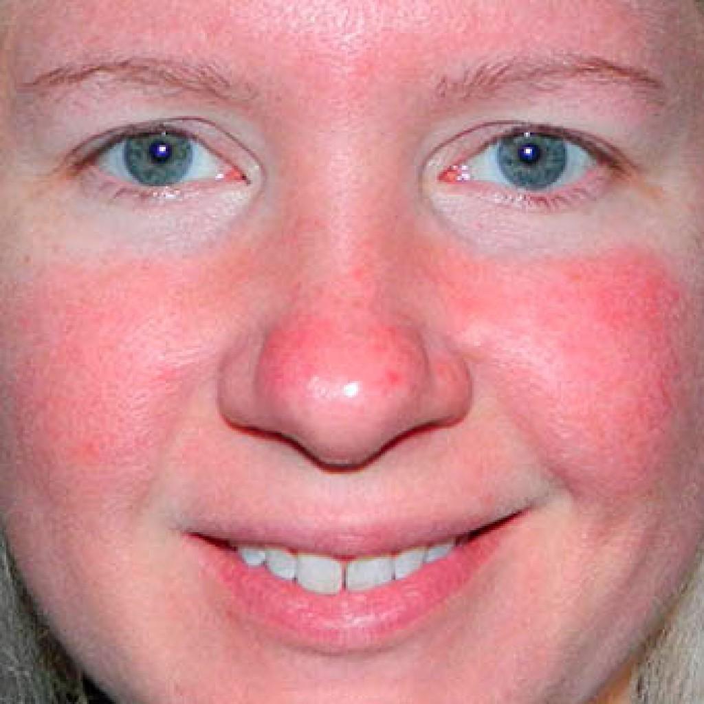 После удаления зуба опухла щека: что