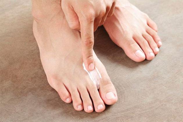 мазь для ног от пота