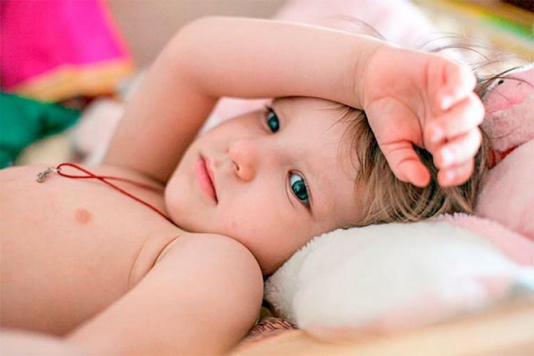 Почему ребенок 3 года сильно потеет