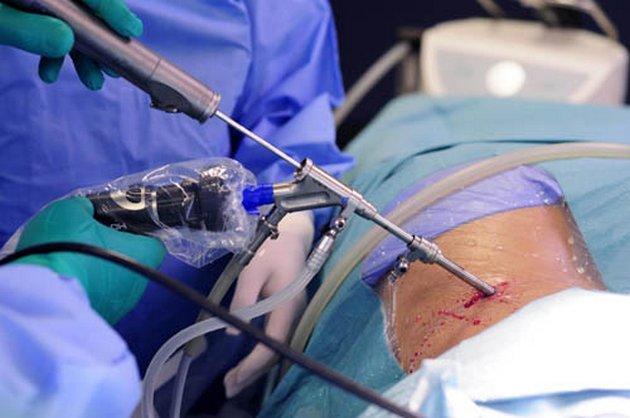 цель операции симпатэктомии