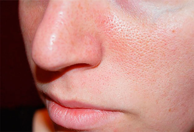 Как сделать менее заметные поры на лице