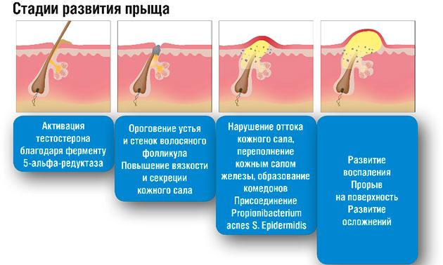 стадии развития угрей