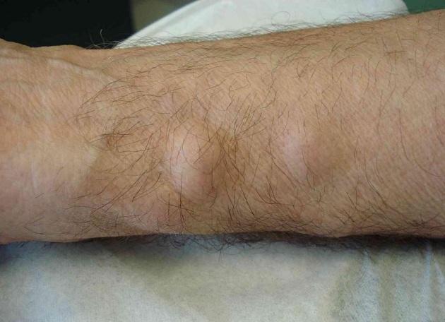жировик на ноге