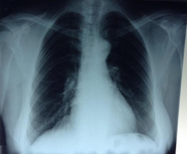 Плевр-наслоения в кардиодиафрагмальном синусе