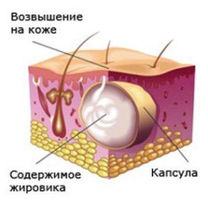 Как лечить липома или жировик народными средствами