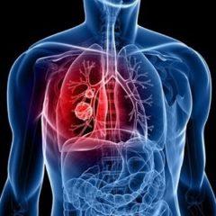 Липома в легких: симптомы, причины и лечение