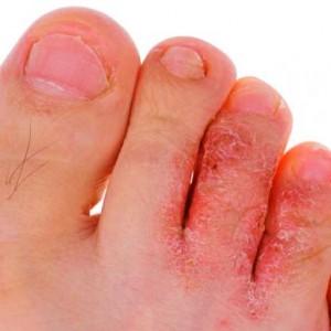 пример потницы на ногах №1