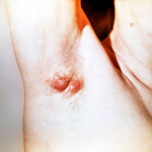 гидраденит с воспалениями