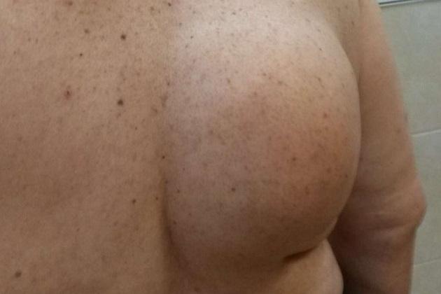 Свекла на жировик отзывы thumbnail