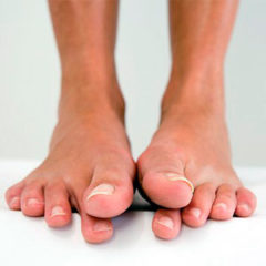 Потница на ногах у взрослых людей - фото внешних провлений